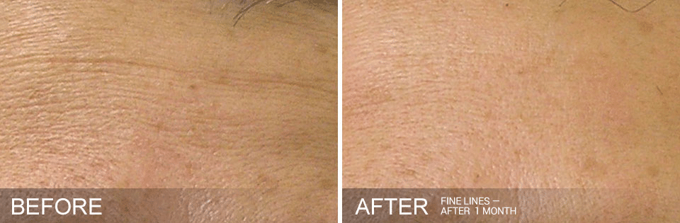 Hydrafacial before and after for fine lines. Call 206-935-5689 to schedule your Hydrafacial.