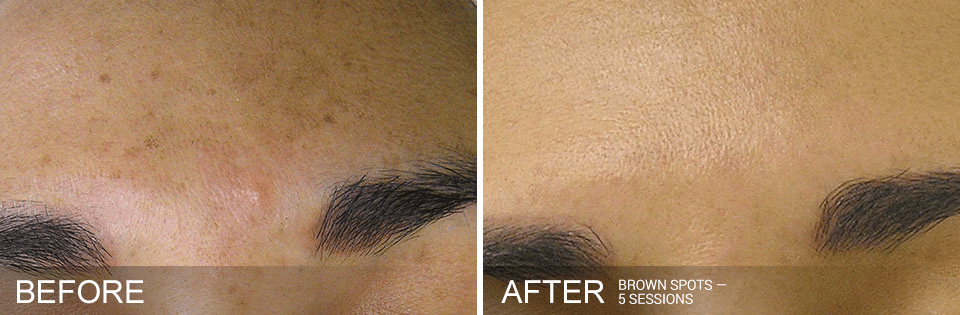 Hydrafacial before and after for brown spots. Call 206-935-5689 to schedule your Hydrafacial.