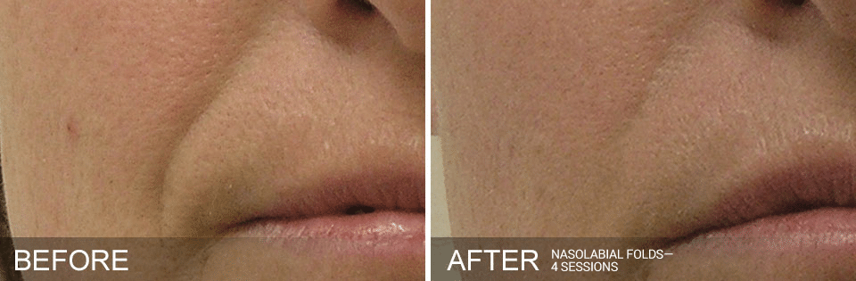 Hydrafacial before and after for nasolabial folds. Call 206-935-5689 to schedule your Hydrafacial.