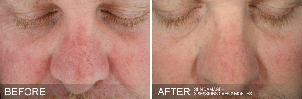 Hydrafacial Before And After For Sun Damage. Call 206-935-5689 To Schedule Your Hydrafacial.