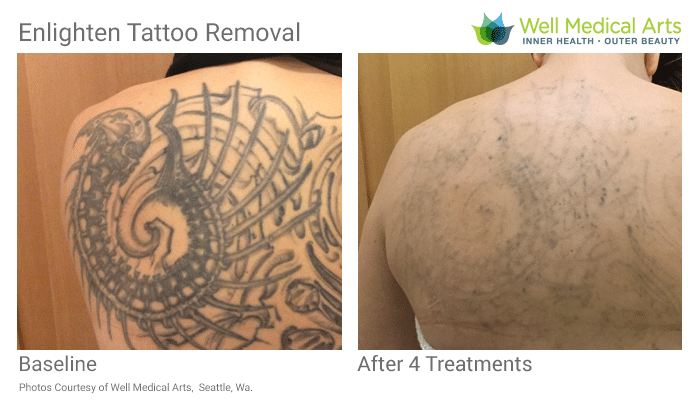 Tattoo Removal Process In Seattle For A Large Back Piece At Well Medical Arts. Call 206-935-5689 To Schedule Your Consultation.