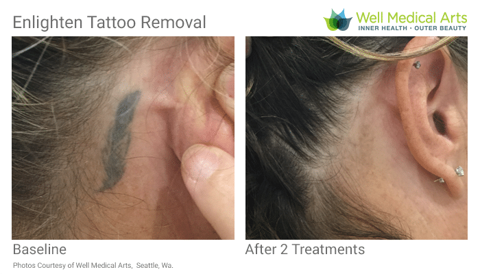 Tattoo Removal Before And After In Seattle After 2 Treatments With The Cutera Enlighten. Call Well Medical Arts At 206-935-5689 To Schedule Your Consultation.