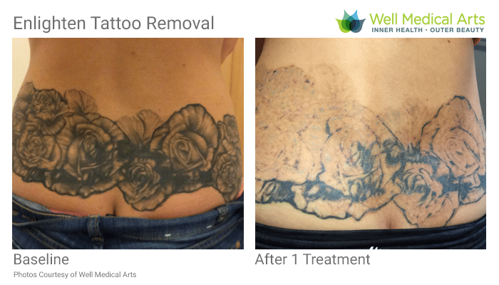 Seattle Laser Tattoo Removal In Process After 1 Treatment With The Cutera Enlighten At Well Medical Arts In Seattle. Call 206-935-5689 To Schedule Your Complimentary Consultation. Learn More At