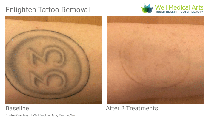Seattle Tattoo Removal At It's Finest. Come Learn How To Say Goodbye To That Nagging Tattoo. Call The Experts At Well Medical Arts At 206-935-5689 To Schedule Your Consultation. Or Visit Us Online To See More Tattoo Removal Before And After Photos.
