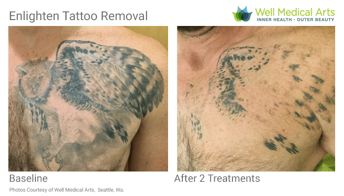 2 Tattoo Removal Treatments Using Picosecond Settings With The Cutera Enlighten. Call 206-935-5689 To Schedule Your Complimentary Consultation. Learn More At