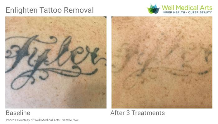 Tattoo Removal Before And Afters In Seattle At Well Medical Arts. Call 206-935-5689 To Schedule Your Consultation.