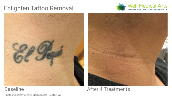Tattoo Removal In Seattle At It's Best At Well Medical Arts. Call 206-935-5689 To Schedule Your Consultation. See More Laser Tattoo Removal Before And After Photos At Www.wellmedicalarts.com