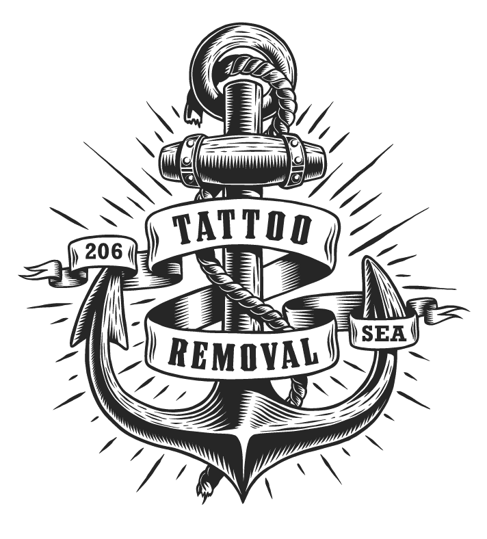 Custom Pico laser tattoo removal in Seattle at Well Medical Arts. Call 206-935-5689 to schedule your consultation to start saying goodbye to that unwanted tattoo.