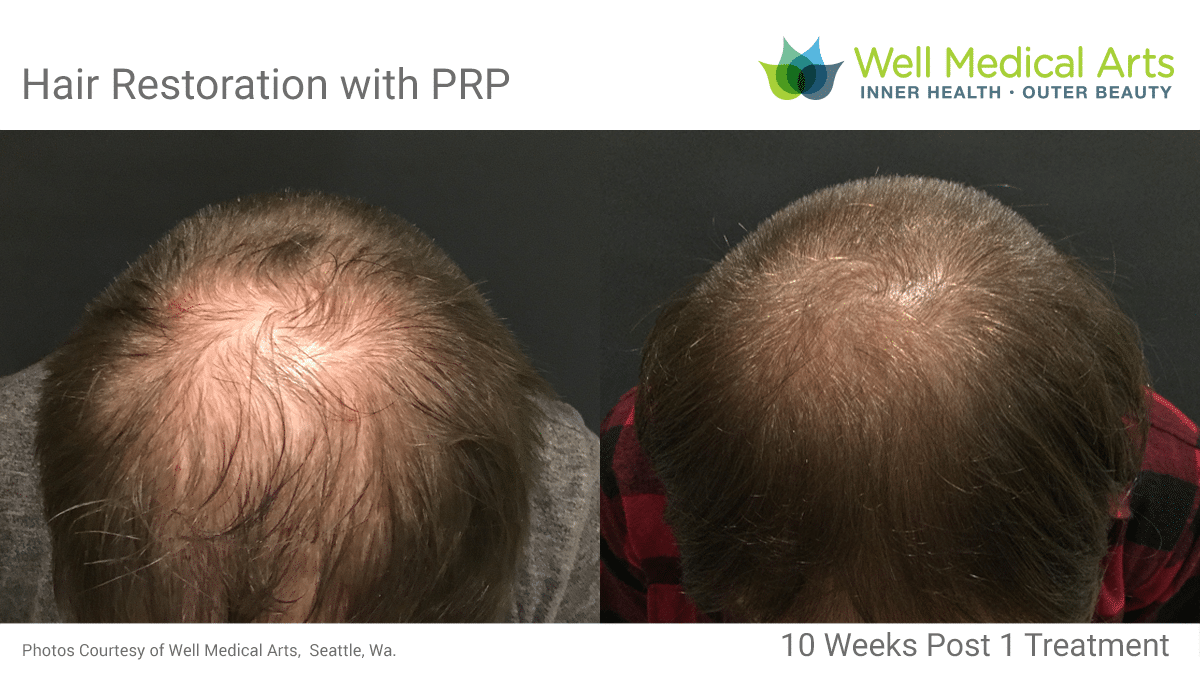 Hair Restoration With PRP And Acell Before And After In Seattle At Well Medical Arts