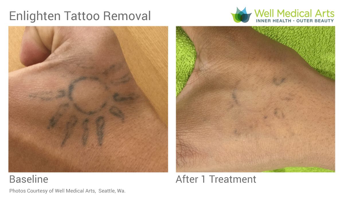 After 1 Laser Tattoo Removal Treatment With Our Cutera Enlighten With Picosecond Technology. The Stick And Poke Tattoos Get Amazing Results Fast. Call Well Medical Arts At 206-935-5689 To Schedule Your Consultation.