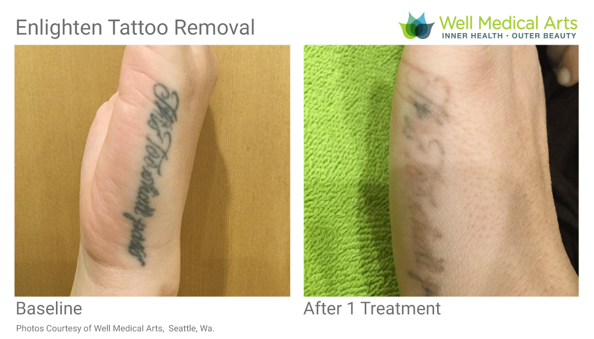 Before And After 1 Treatment Of Tattoo Removal At Well Medical Arts In West Seattle.