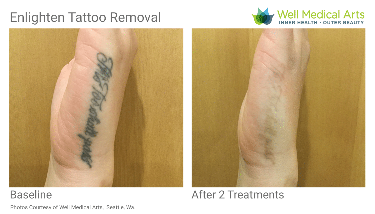 Before And After 2 Tattoo Removal Treatments Using The Cutera Enlighten At Well Medical Arts In West Seattle