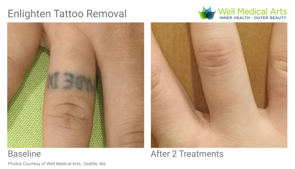 After 2 Tattoo Removal Treatments Using The Cutera Elighten At Well Medical Arts In West Seattle.