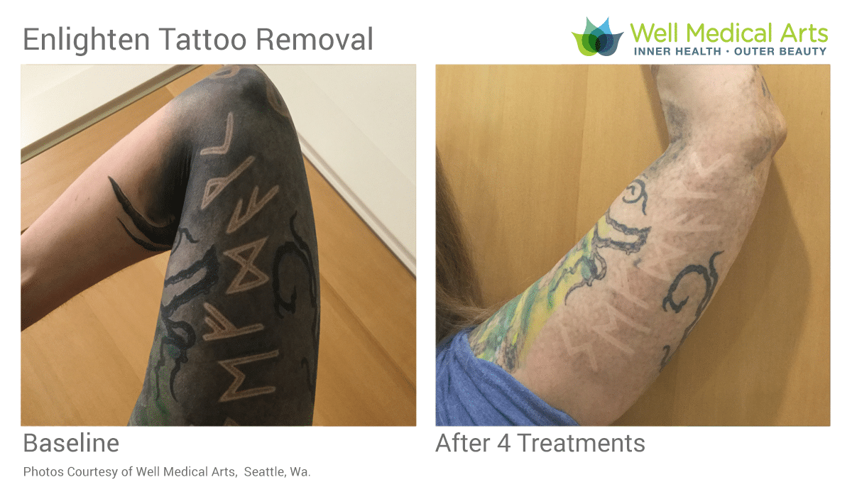 More Amazing Laser Tattoo Removal Results In Seattle At Well Medical Arts Using The State Of The Art Cutera Enlighten With Picosecond Technology. See More Tattoo Removal Before And Afters At Www.wellmedicalarts.com
