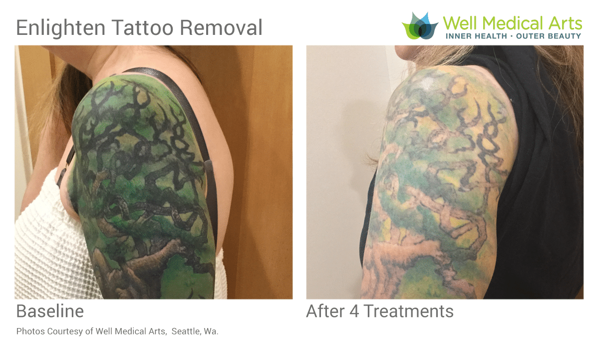 Tattoo Removal Before And After In Seattle At Well Medical Arts. Call 206-935-5689 To Schedule Your Consultation.