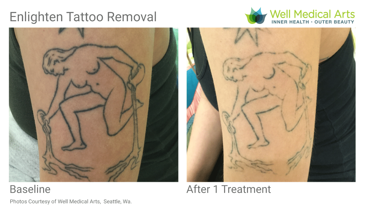 Tattoo Removal Before And After 1 Treatment At Well Medical Arts In West Seattle