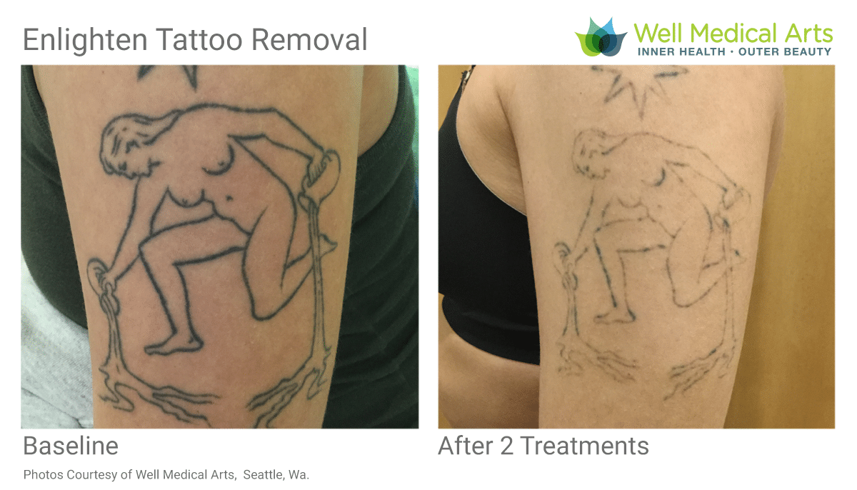 Before And After Tattoo Removal. 2 Treatments At Well Medical Arts.