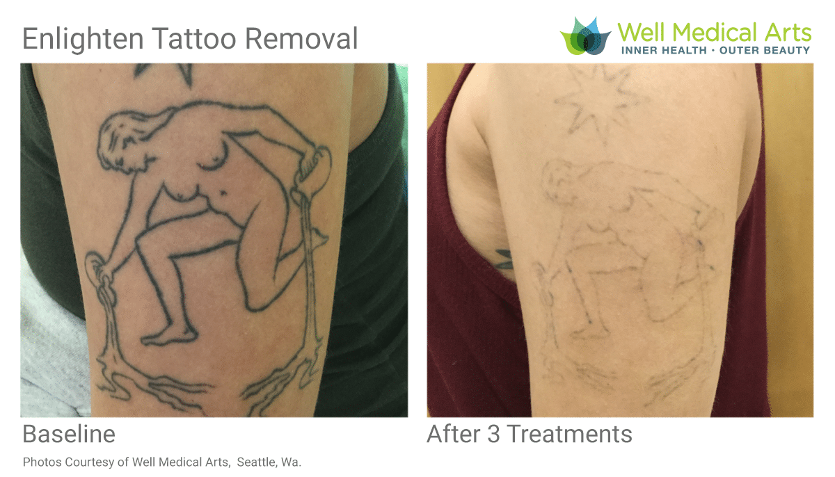 Seattle Tattoo Removal Before And After From Well Medical Arts. Call 206-935-5689 To Schedule.