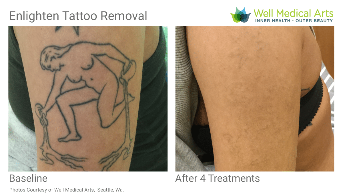 Enlighten Tattoo Removal With Pico Technology. The Best Laser Tattoo Removal Before And Afters In Seattle At Well Medical Arts. Call 206-935-5689 To Schedule Your Complimentary Consultation. Learn More At