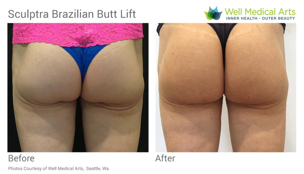 Before and After - Brazilian Butt Lift using Sculptra Aesthetic at Well Medical Arts in Seattle
