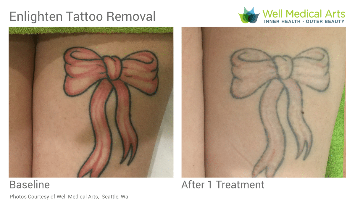 Laser Tattoo Removal Red Before And After 1 Treatment With The Cutera Enlighten Using Picosecond Technology.