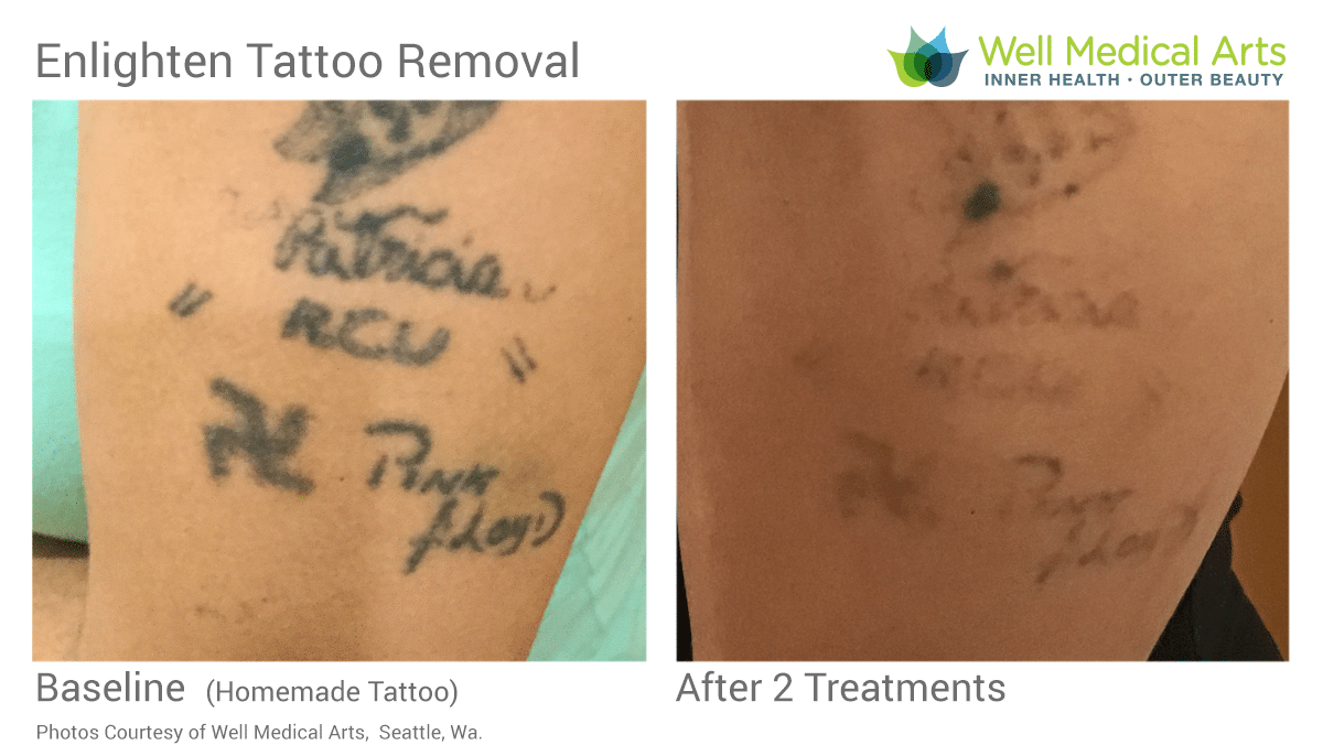2 Treatments With The Cutera Enlighten Laser Tattoo Removal In Seattle. This Is A 12 Year Old Homemade