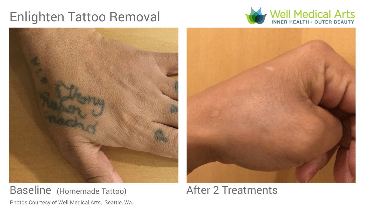 Before And After Laser Tattoo Removal At Well Medical Arts In Seattle