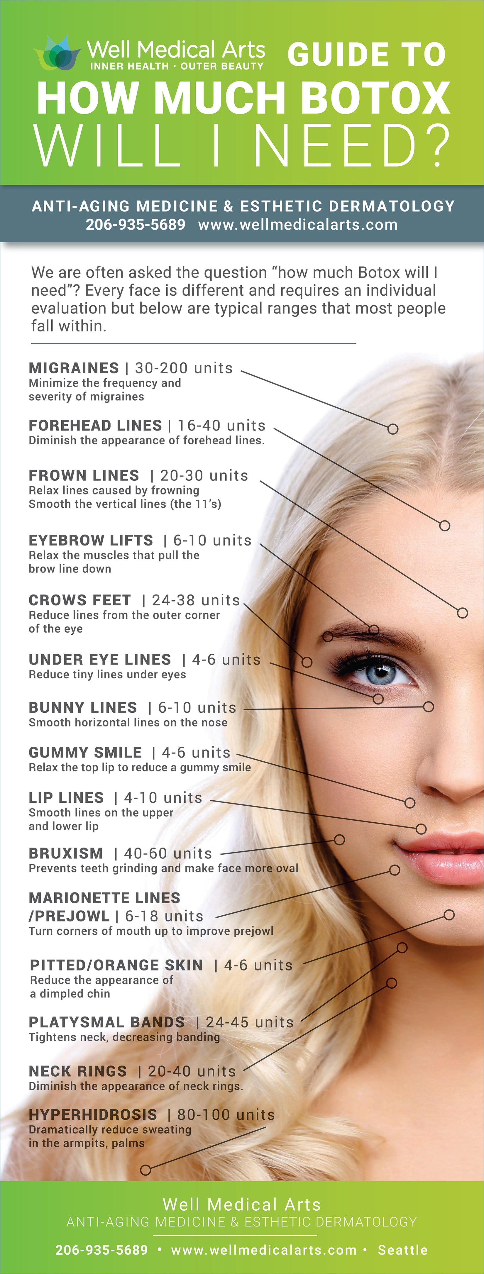 Diagram showing how much botox costs with average amounts of units per area.