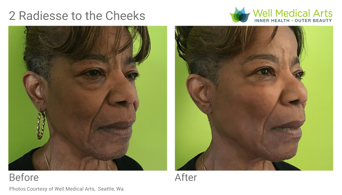 Before And After Radiesse, 2 Syringes To Upper Cheek. Learn More At Www.wellmedicalarts.com