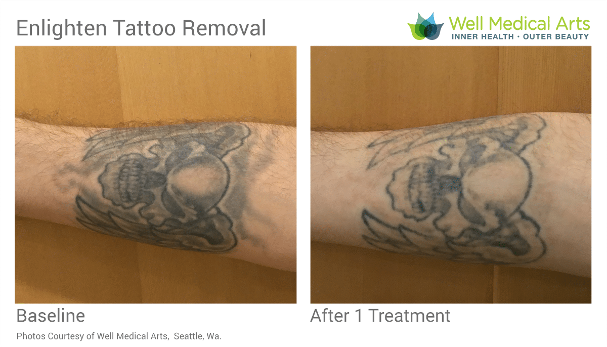 Awesome Before And After Results From 1 Laser Tattooo Removal Treatment At Well Medical Arts In Seattle.