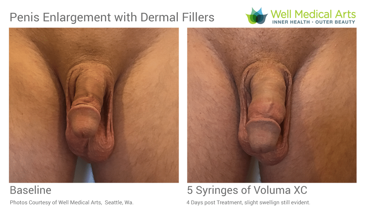 Non Surgical Penis Enlargement using Dermal Fillers at Well Medical Arts in Seattle.