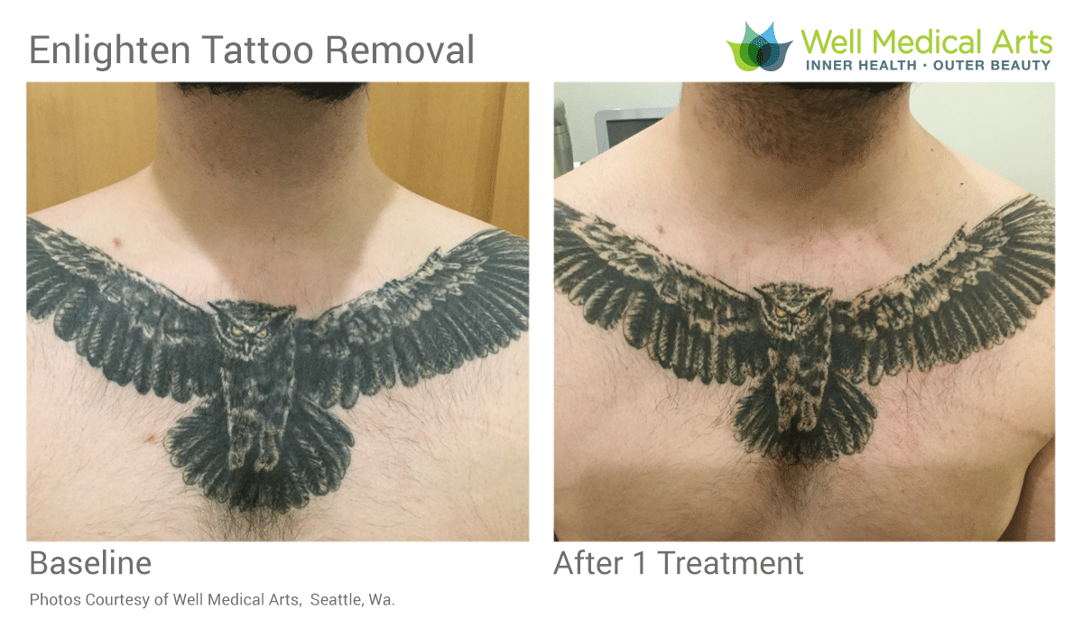Tattoo Removal Before And After With Pico Technology At Well Medical Arts In Seattle