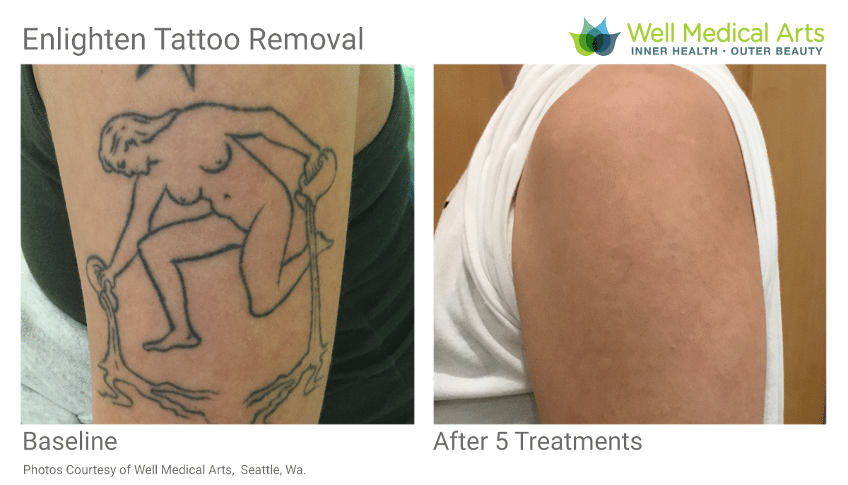 The Best Laser Tattoo Removal Before And Afters In Seattle At Well Medical Arts. Call 206-935-5689 To Schedule Your Consultation.