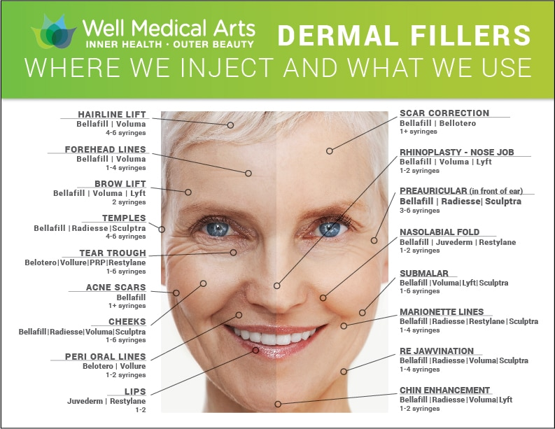 Dermal Filler map of where and how much dermal filler we typically use at Well Medical Arts in Seattle