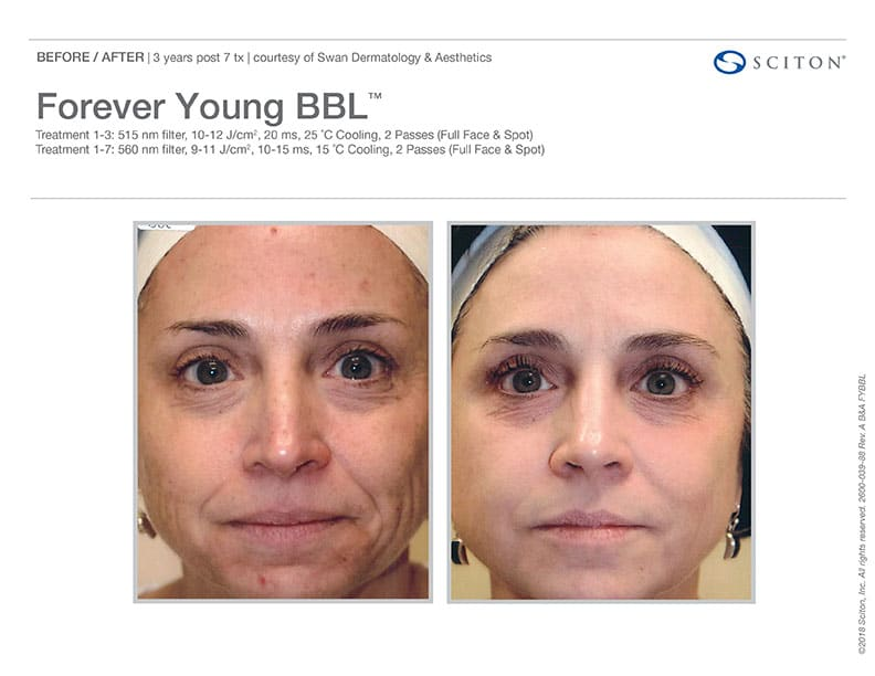 Before And After Images Of The BBL Forever Young Treatment. Call Well Medical Arts In Seattle At 206-935-5689 To Schedule Your Treatment.