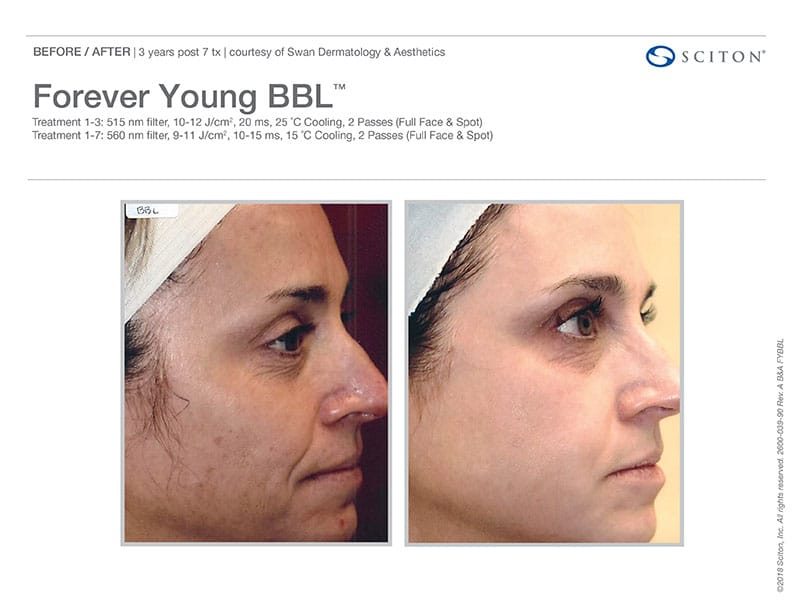 Forever Young BBL Treatment Before And After Images. Call Well Medical Arts In Seattle At 206-935-5689 To Schedule Your Treatment.