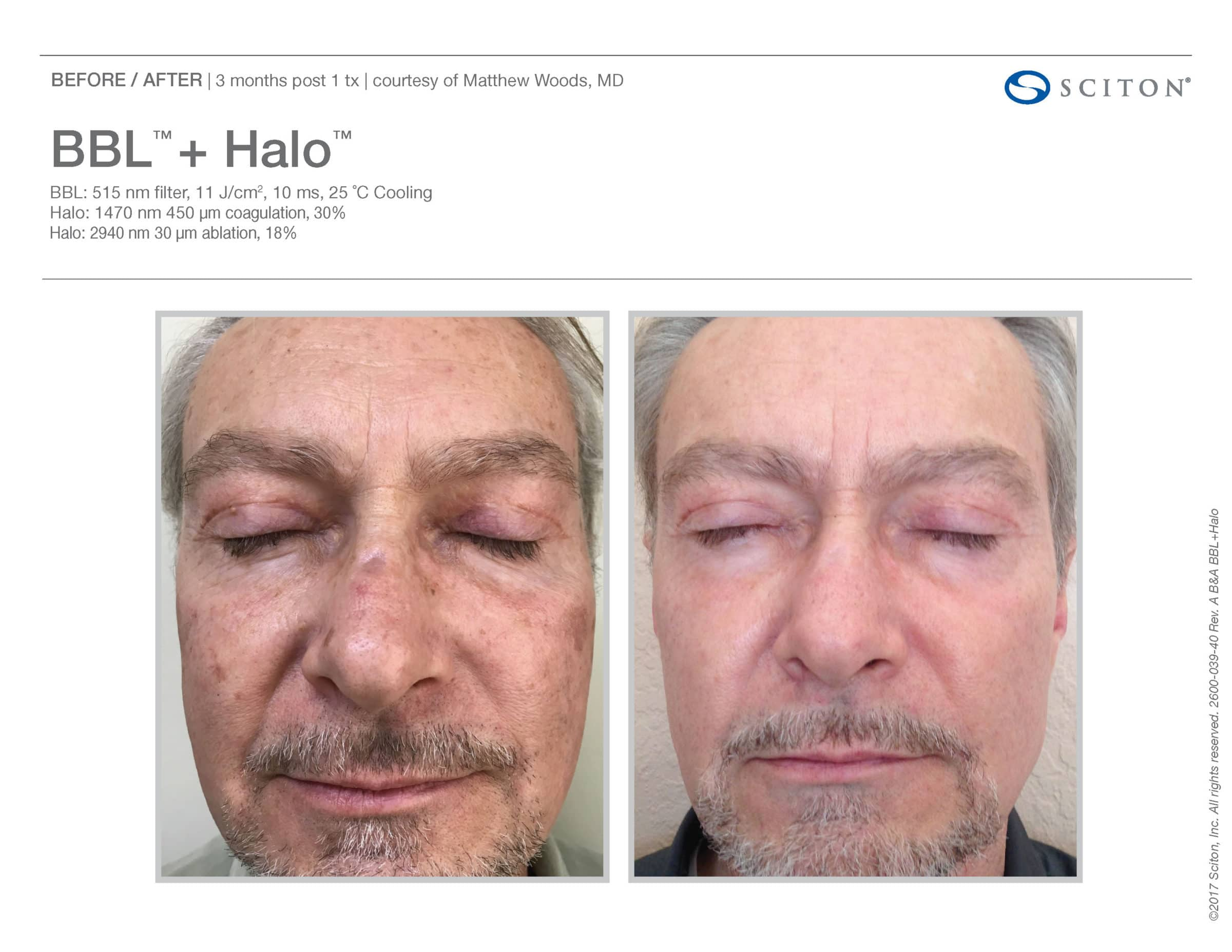 Halo + BBL - Well Medical Arts: Seattle's Anti-Aging Clinic