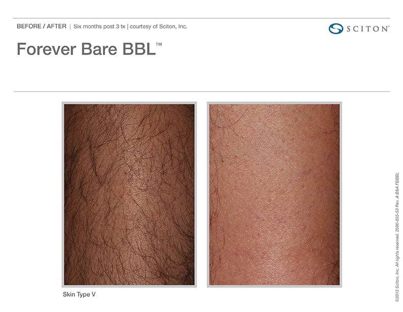 Laser Hair Removal Before And After.
