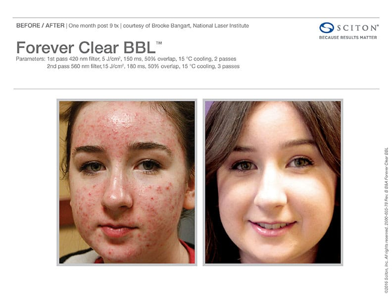 Before And After Images Of Acne Treatment With The Forever Clear BBL At Well Medical Arts