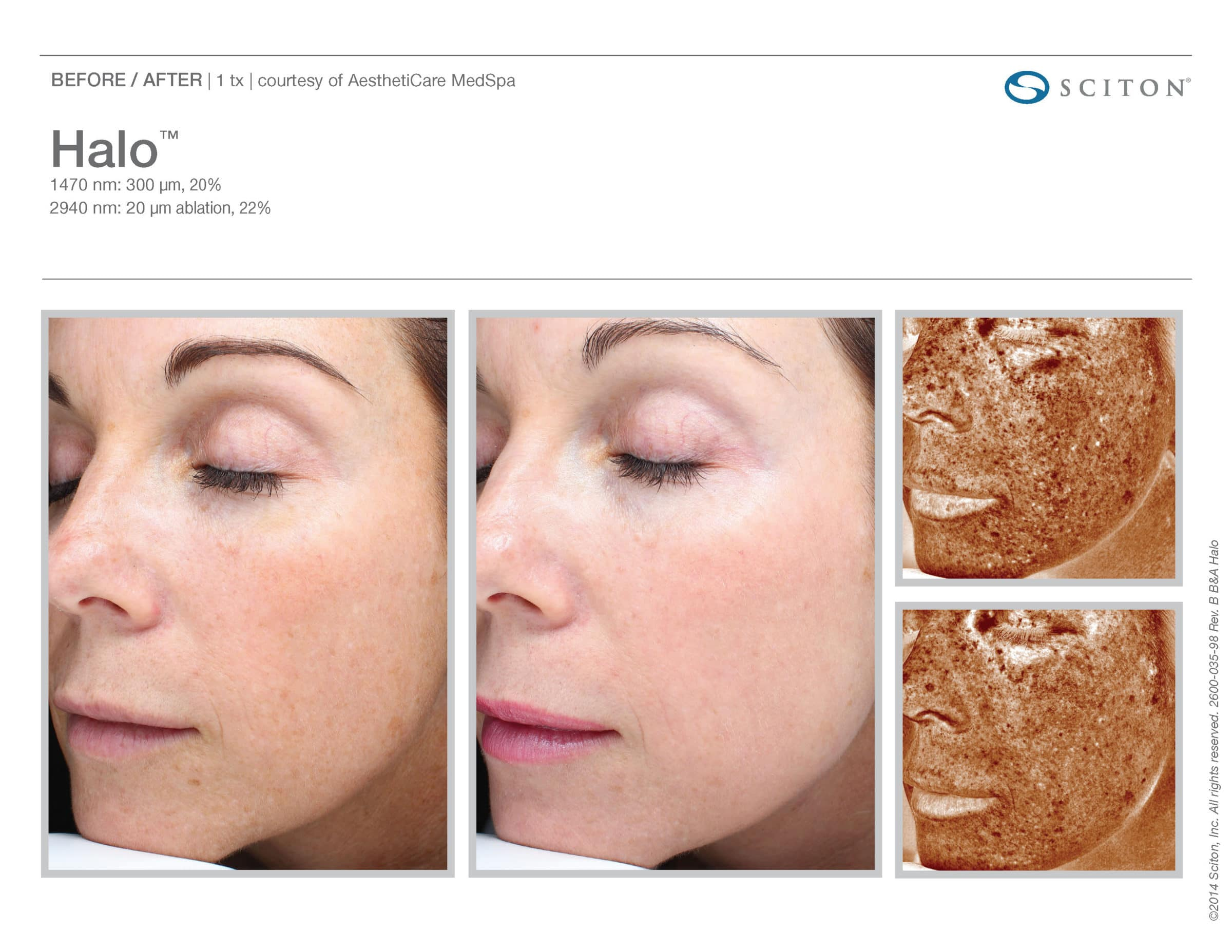 Before And After From Halo Fractional Laser. Halo Is Available At Well Medical Arts In Seattle. Call 206-935-5689 To Schedule Your Treatment Now.