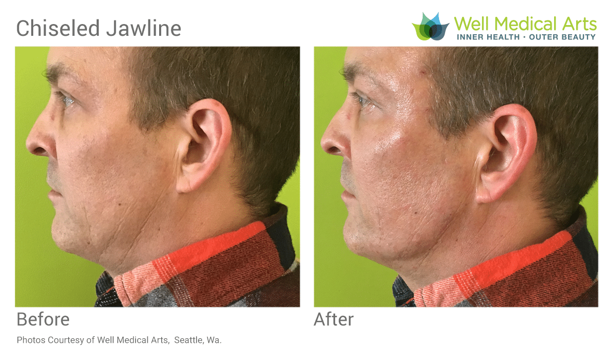 Get a Stronger Jawline! Chisel your jaw with dermal fillers at Well Medical Arts in Seattle. Call 206-935-5689 to schedule your appointment today.
