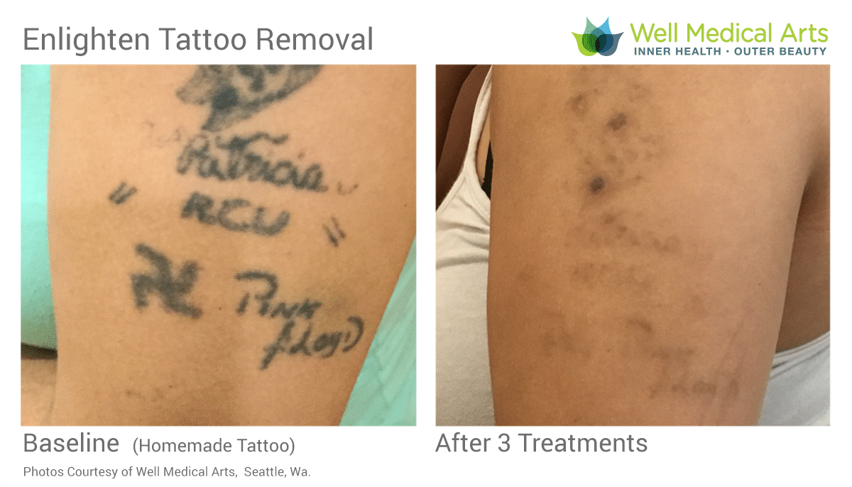 Stick And Poke Tattoo Removal Before And After 3 Treatments