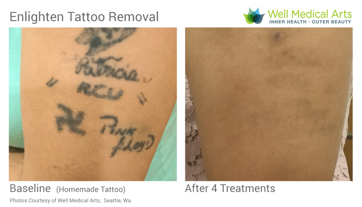 Stick And Poke Tattoo Removal Before And After 4 Treatments