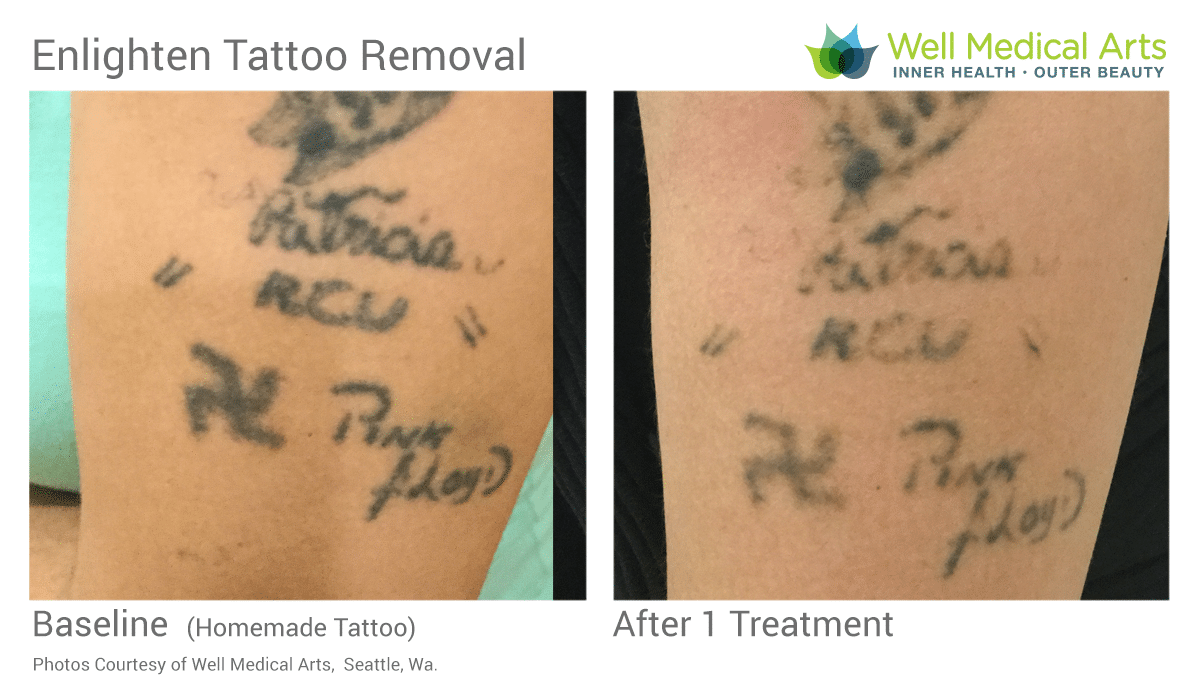 Stick And Poke Tattoo Removal Before And After 1 Treatment With The Cutera Enlighten At Well Medical Arts In Seattle.