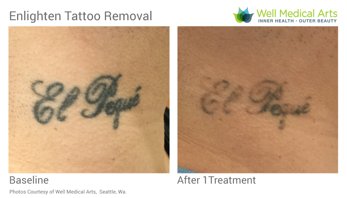 Tattoo Removal Before And After 1 Treatment On Neck With The Cutera Enlighten. Call 206-935-5689 To Schedule Your Complimentary Consultation. Learn More At