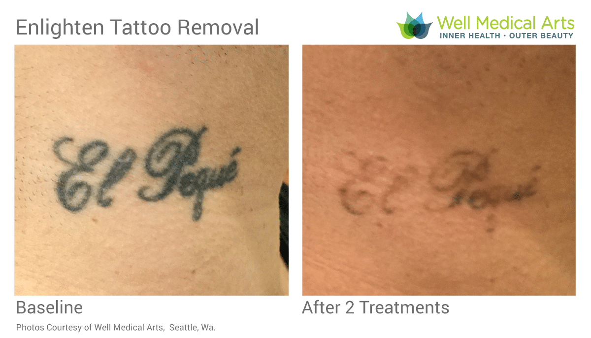 Tattoo Removal Before And After 2 Treatments On Neck With The Cutera Enlighten. Call 206-935-5689 To Schedule Your Complimentary Consultation. Learn More At