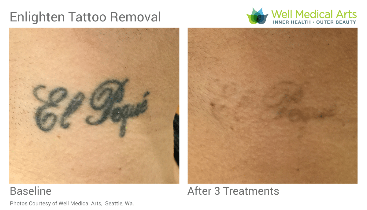 Tattoo Removal Before And After 3 Treatments On Neck.