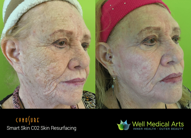 Get a new Skin with SmartSkin CO2 Fractional Resurfacing