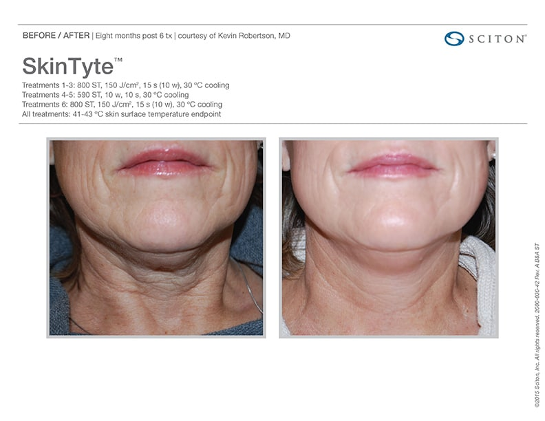 SkinTyte - Skin Tightening at Well Medical Arts in West Seattle