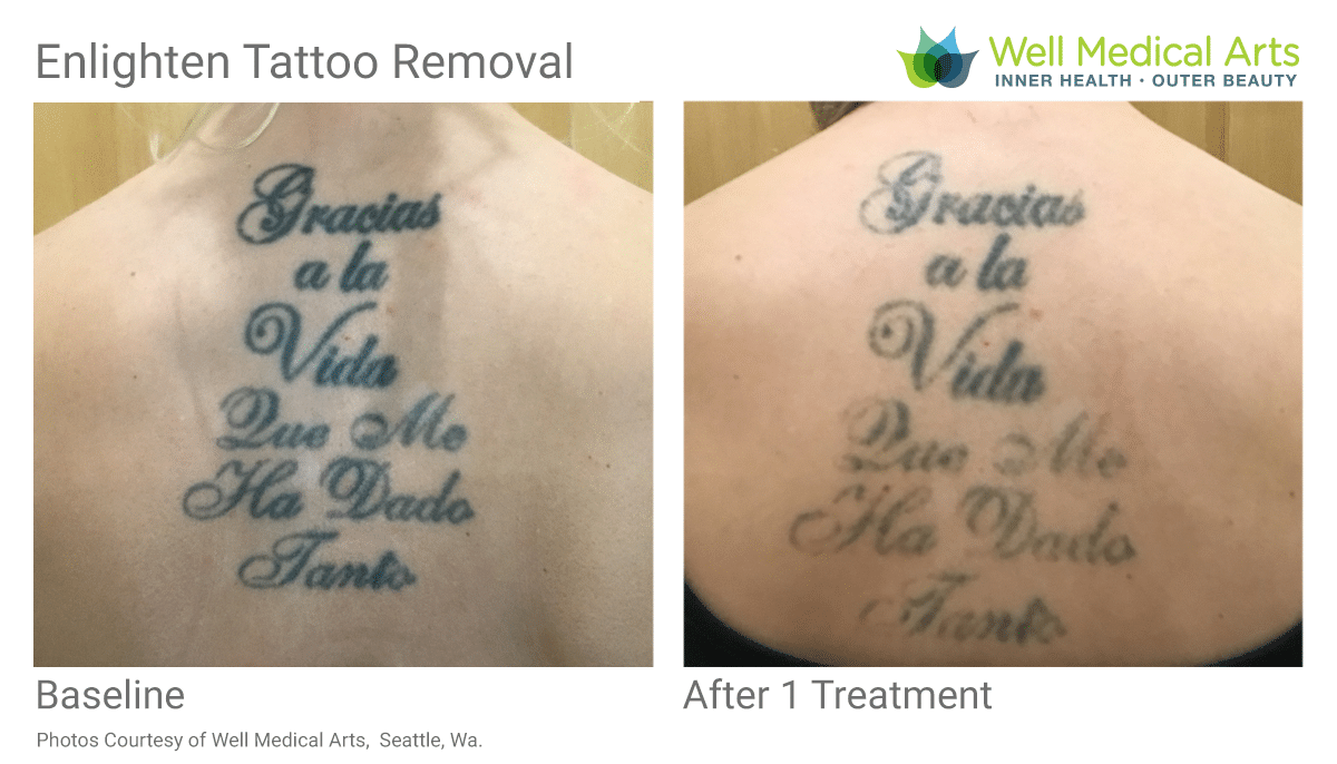 Tattoo Removal Before And After 1 Treatment On Back Tattoo